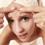 Простые способы, как избавиться от расширенных пор на лице